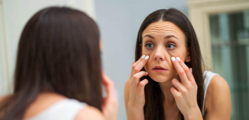 Göz Altı Torbaları Tedavisi