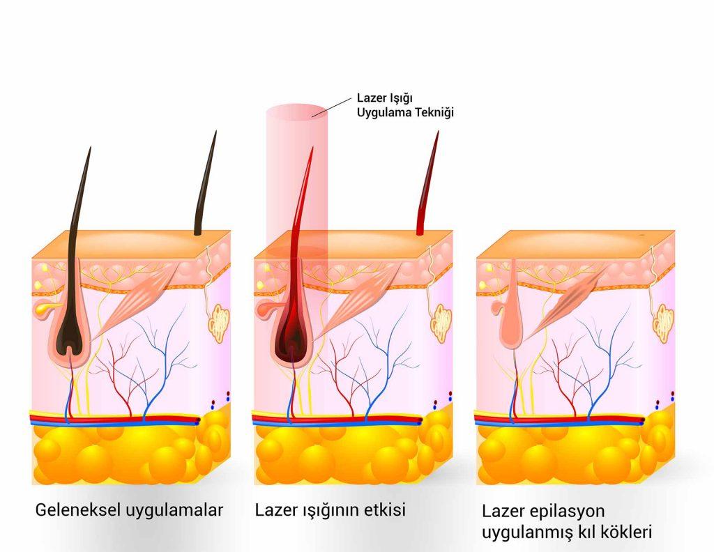 Lazer Epilasyon Sonrası